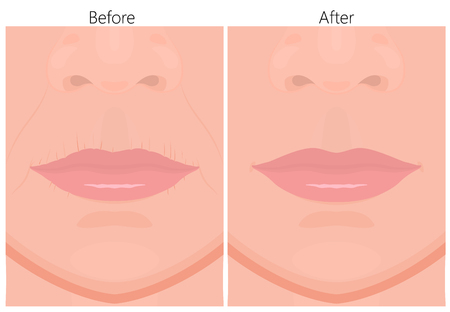 Vector illustration of upper-lip wrinkles removal before and after plastic surgery or cosmetic procedure. For advertising and beauty publications.