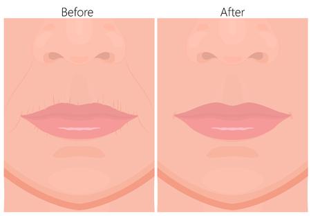 Vektorabbildung der Entfernung von Oberlippenfalten vor und nach plastischen Operationen oder kosmetischen Eingriffen. Für Werbe- und Schönheitspublikationen. Vektorgrafik