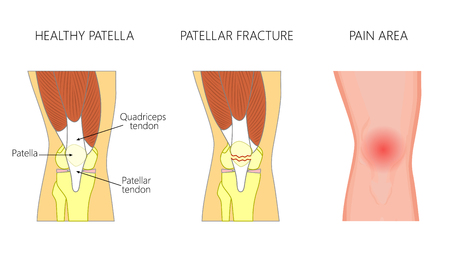 Vector illustration of a healthy knee joint and an unhealthy knee with displaced fracture of the patella. Anatomy, front view of the human knee. For advertising and medical publications. EPS 10.