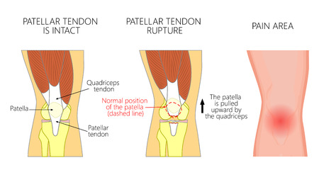Vector illustration of a healthy knee joint and an unhealthy knee with a patellar tendon rupture problem. Anatomy, front view of the human knee. For advertising and medical publications.