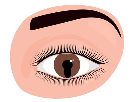 Vector illustration of an iris coloboma Çizim