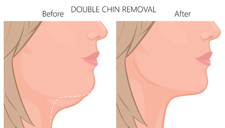 Vector illustration of a double chin removal close up view. For advertising of plastic surgery, medical and beauty publications