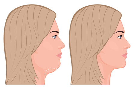 Vector illustration of a double chin removal. For advertising of plastic surgery, medical and beauty publications
