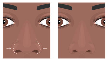 Vector illustration. Front view of a wide human nose before, after aesthetic plastic surgery - rhinoplasty (nose job). Close up view. For advertising, medical and beauty publications. EPS 10. Çizim