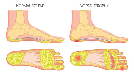 Vector illustration, diagram of a healthy foot and a foot with a fat pad atrophy. Medial and plantar view of a human foot.