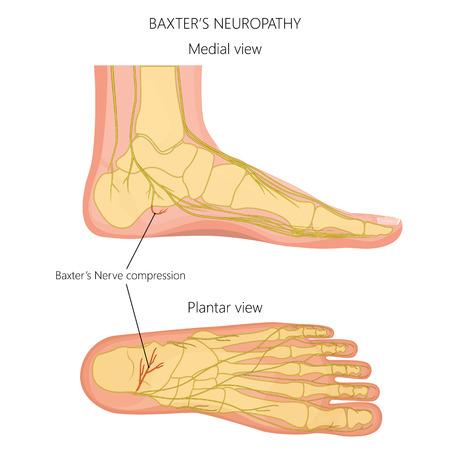 Vektorillustration, Diagramm des Baxter-Neuropathieproblems, Entzündung des Nervus calcaneus inferior. Mediale und plantare Ansicht eines menschlichen Fußes. Vektorgrafik