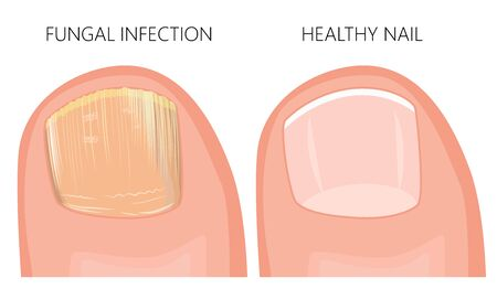 Illustration of toe nail fungal infection. Used: gradient, transparency, blend mode. Illustration