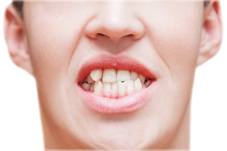 Young man showing crooked growing teeth. The man needs to go to the dentist to install braces.