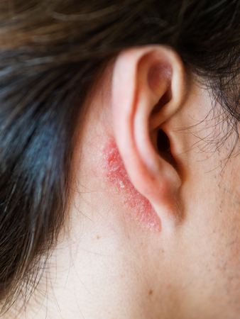 Irritation on the skin behind the ear. Man with flaky skin. Allergy or fungal disease.