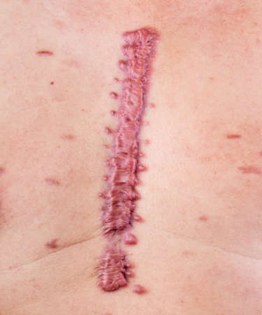 큰 부종 cicatrix - hypertrophic 흉터 스톡 콘텐츠