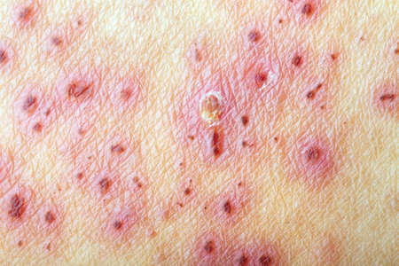 varicella: After treatment of skin with Herpes Zoster (Shingles)
