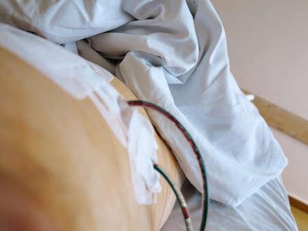 drenaggio: Paziente di sesso maschile in ospedale dopo l'intervento operativo con drenaggio