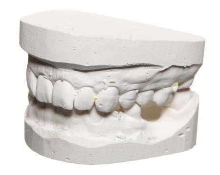 plaster mould: Dental casting gypsum model plaster cast stomatologic human jaws prothetic laboratory, technical shots Stock Photo