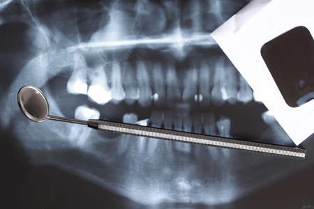 Panoramic x-ray image scan of humans teeth and dental mirror photo
