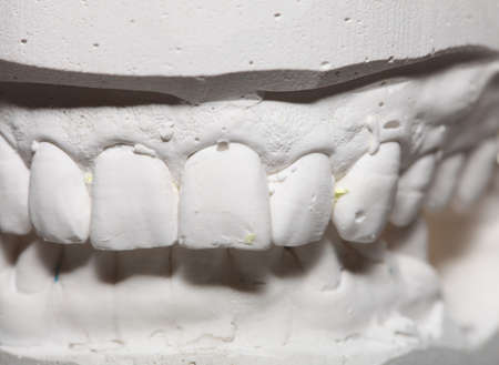 prothetic: Dental casting gypsum model plaster cast stomatologic human jaws prothetic laboratory, technical shots Stock Photo