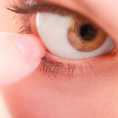 Part of face female eyes. Medicine healthcare human eye pain foreign body. photo
