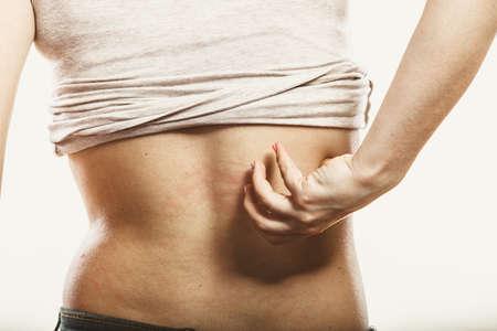 eczema: Human scratching itchy sore back skin. Allergy rash. Health problem.