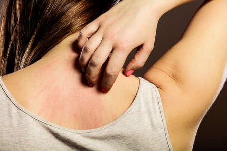 rash: Problema de salud. Mujer joven del primer rascarse la picaz�n en la espalda con la erupci�n de alergia