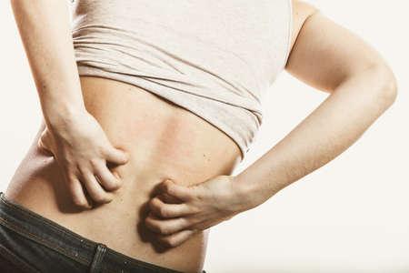 sarpullido: La piel humana rascarse con picaz�n dolor de espalda. Erupci�n de la alergia. Problema de salud.