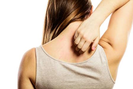 Gesundheitsproblem. Junge Frau kratzt sich den Rücken mit juckende Allergie Hautausschlag, isoliert auf weiss