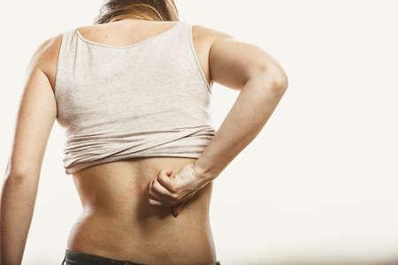 rash: La piel humana rascarse con picaz�n dolor de espalda. Erupci�n de la alergia. Problema de salud.