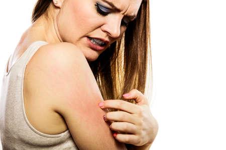 Problema de salud. Mujer joven que rasguña su brazo con picor y erupción de la alergia Foto de archivo