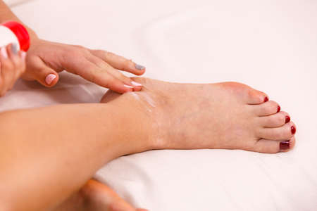 foot cream: Woman fit girl putting ointment cream on bad injured ankle or applying moisturizer cosmetic cream on foot. Health skin care.