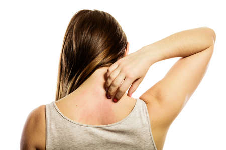 Gezondheidsprobleem. Jonge vrouw krabt haar jeukende rug met allergie uitslag geïsoleerd op wit