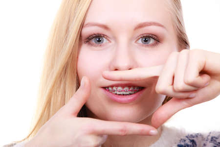 Orthodontist dentistry treatment concept. Happy smiling woman showing her dental braces on teeth