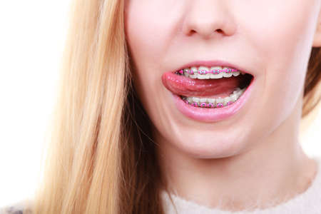 appearance: Orthodontist dentistry treatment concept. Happy smiling woman licking her dental braces on teeth