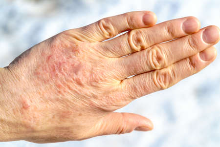 Detailed closeup of dry mature woman hand. Hand care and dermatology problems concept.