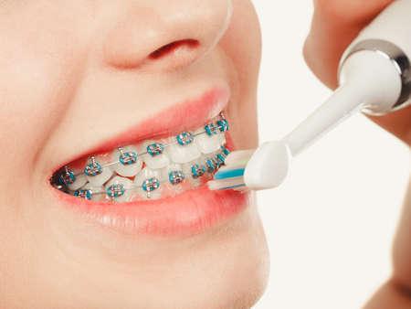 歯科医や歯科矯正医の概念。笑顔クリーニングと歯ブラシを使用して青のブレースを有する歯を磨く若い女性