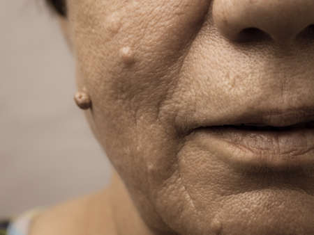 Details of senior woman face. Elderly pensioner female, dermal fibroma close up. 版權商用圖片