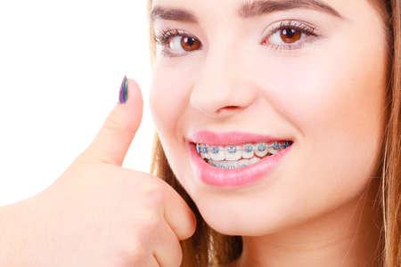 歯科医や歯科矯正医の概念。女性は青いブレースを彼女の白い歯を見せて笑顔、親指ジェスチャーを。