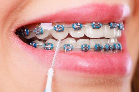 Dentist and orthodontist concept. Young woman cleaning and brushing teeth with blue braces using toothbrush Stok Fotoğraf