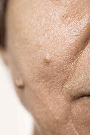 Details of senior woman face. Elderly pensioner female, dermal fibroma close up. Stock Photo