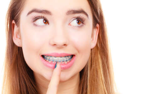 Dentist and orthodontist concept. Young woman smiling showing teeth with blue braces