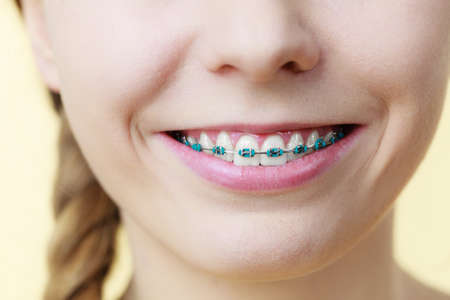 Dentist and orthodontist concept. Closeup of woman smile showing teeth with blue braces Stock Photo
