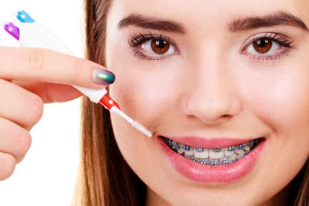 Dentist and orthodontist concept. Young woman cleaning and brushing teeth with blue braces using toothbrush Zdjęcie Seryjne