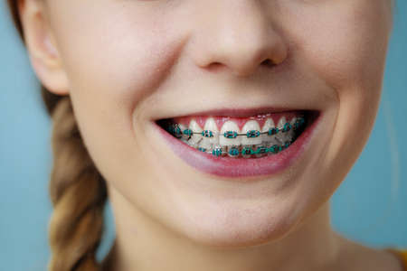 Dentist and orthodontist concept. Closeup of woman smile showing teeth with blue braces Zdjęcie Seryjne