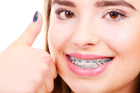 Dentist and orthodontist concept. Woman smile showing her white teeth with blue braces, thumb up gesture.