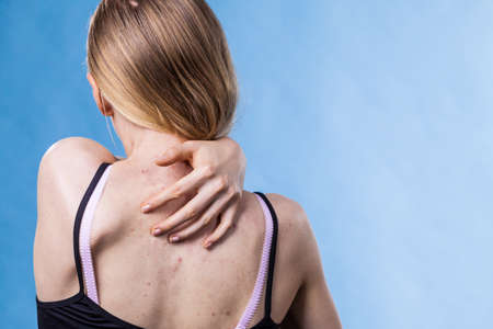 Teen girl scratching her shoulder with pimples.