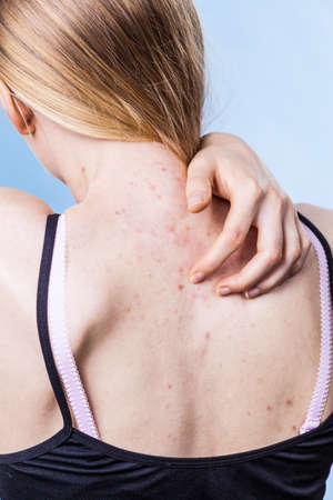 Health problem, skin diseases. Young woman showing her back with acne, red spots. Teen girl scratching her shoulder with pimples.