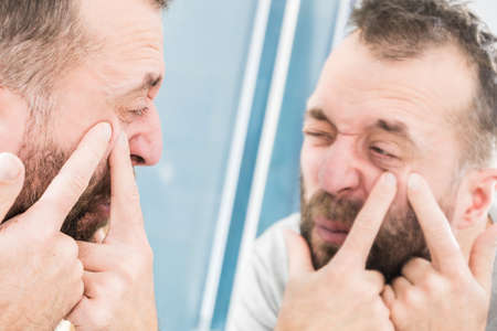 Adult man investigating his pimples on face. Guy trying to get rid of pimple squeezing it. Stock fotó
