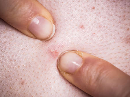 Woman having pimples, red spots. Dermatoses, skin condition problems, dermatological problem during puberty.