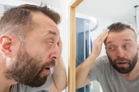 Worried adult man looking in bathroom mirror at his decreasing hairline thinking about hair care treatment