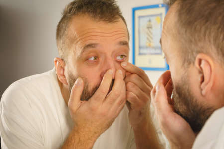 Adult man investigating his wrinkles or pimples on face. Guy after waking up looking at himself in mirror. Aging process concept.