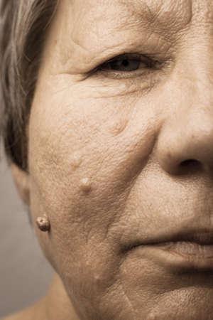 Details of senior woman half face. Elderly pensioner female, cheek close up.