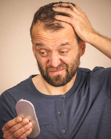Worried adult man looking at little mirror examing his face or balding hair line scalp.