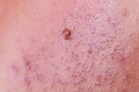 Haut nach dem Laser entfernen unerwünschter Haare aus dem Gesicht. Detailansicht. Epilation und kosmetisches Verfahren. Standard-Bild